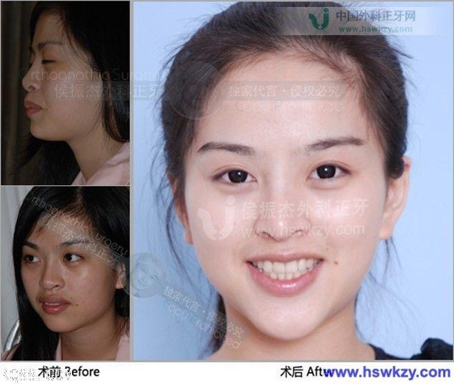 突 手術 前 下顎